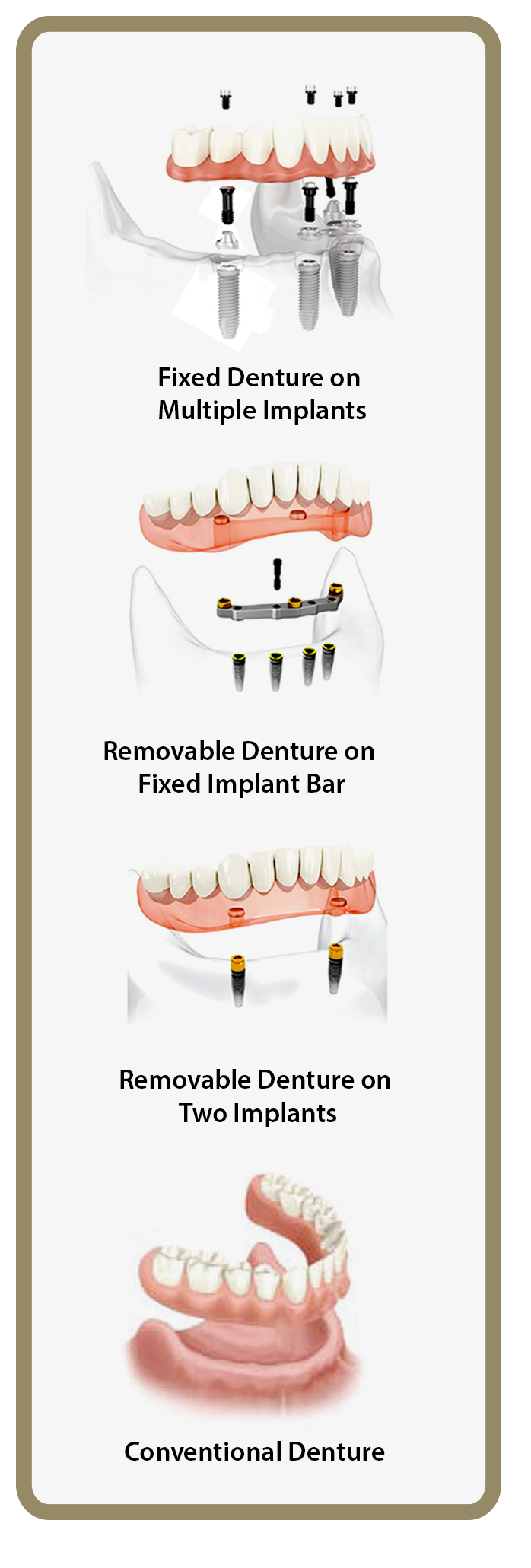 Fixed Implants & Removable Dentures